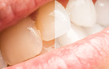 ホワイトニングで黄ばんだ歯を白くしたい