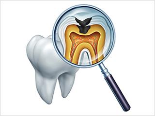 痛みを感じたら虫歯はすでに進行しています