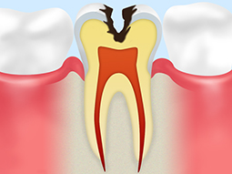 C2【象牙質に達した虫歯】