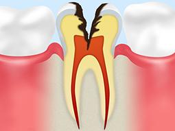 C3【神経に達した虫歯