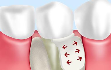 歯周再生治療
